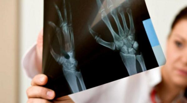 Potenciar Huesos Fuertes