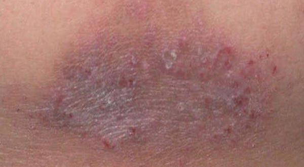 La psoriasis los novísimos medios del tratamiento