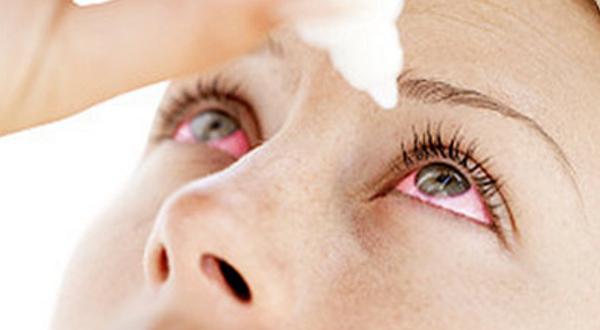 Solucionar la Irritación Ocular
